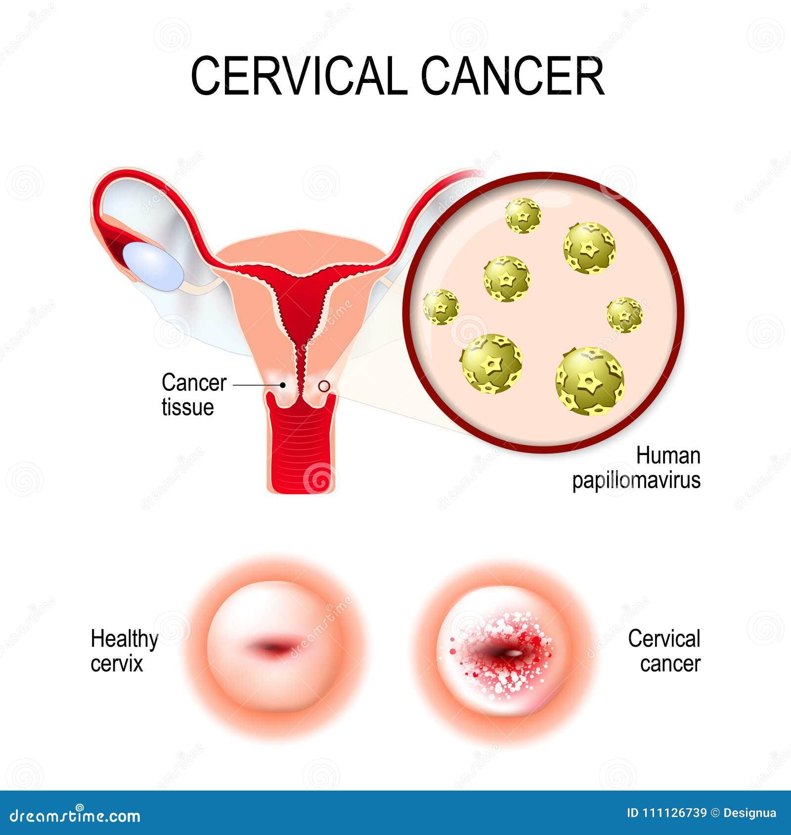 hpv virus in cervical cancer)