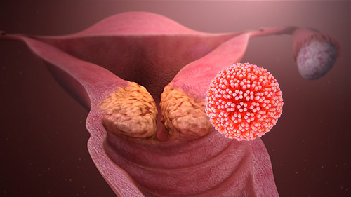 consequence du papillomavirus chez lhomme)