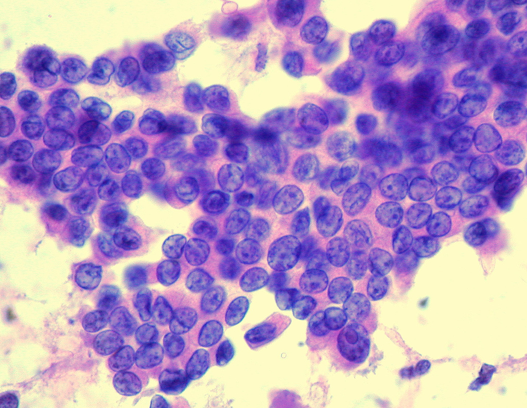 papillary thyroid cancer fna findings