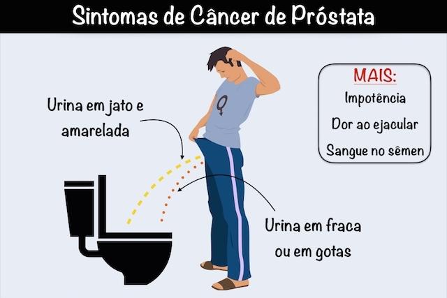 Prostata remedii populare tumora