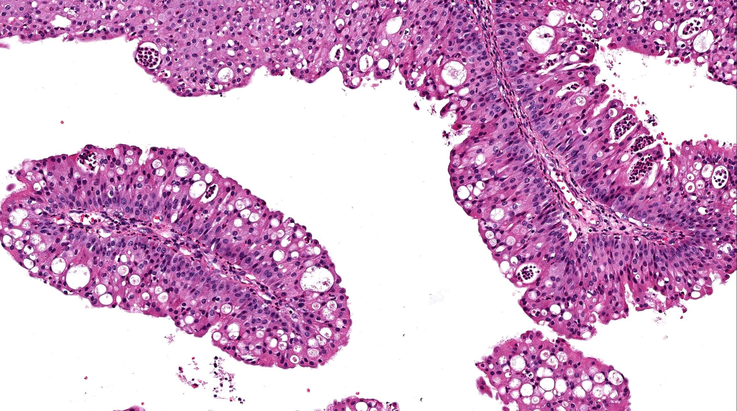 papillary lesion histology
