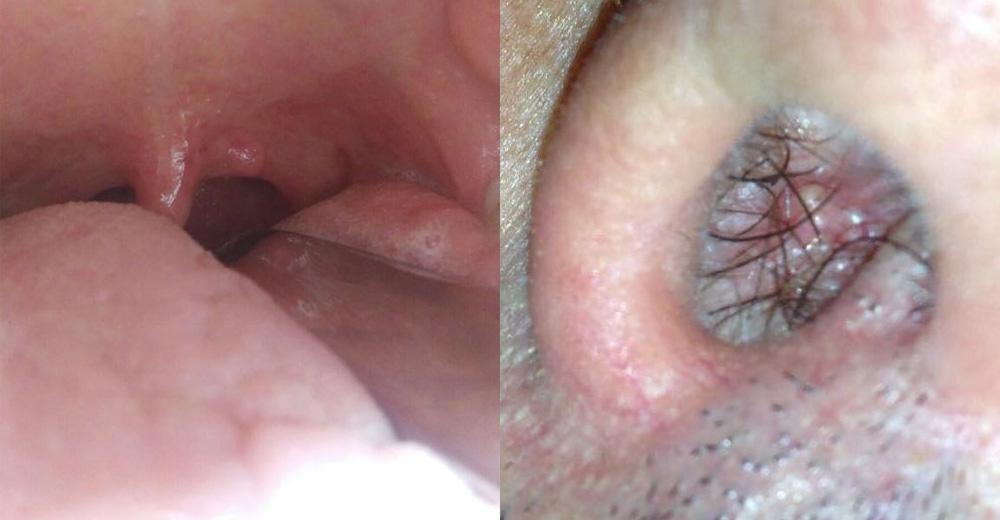 rimozione papilloma bocca