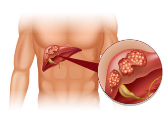cancerul hepatic definitie)
