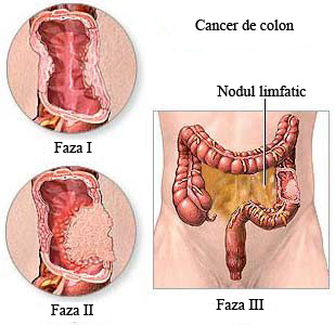 cancerul colorectal)