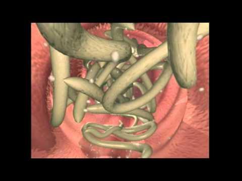 parasita ascaris lumbricoides endometrial cancer etiology