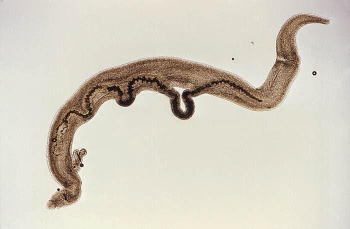 schistosomiasis united states)