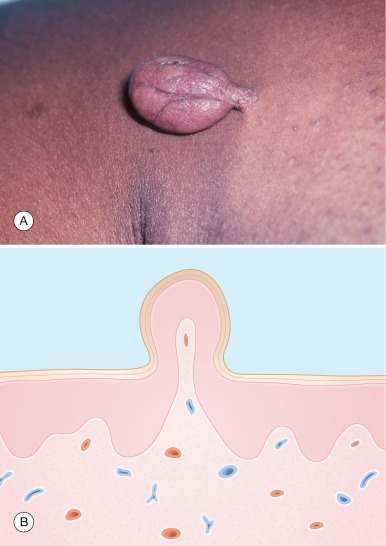 papillomatosis in skin tags)