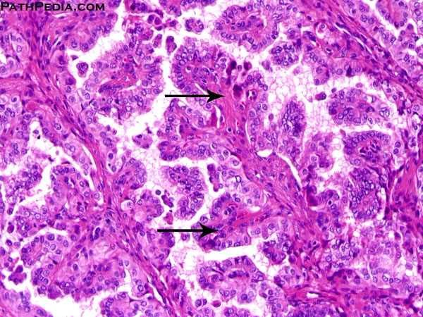 papillary thyroid carcinoma)