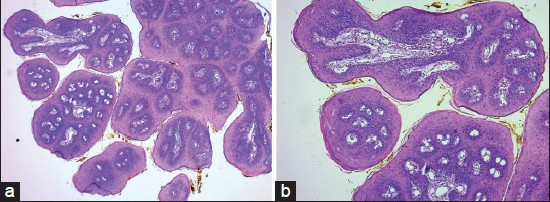squamous papilloma tongue histopathology