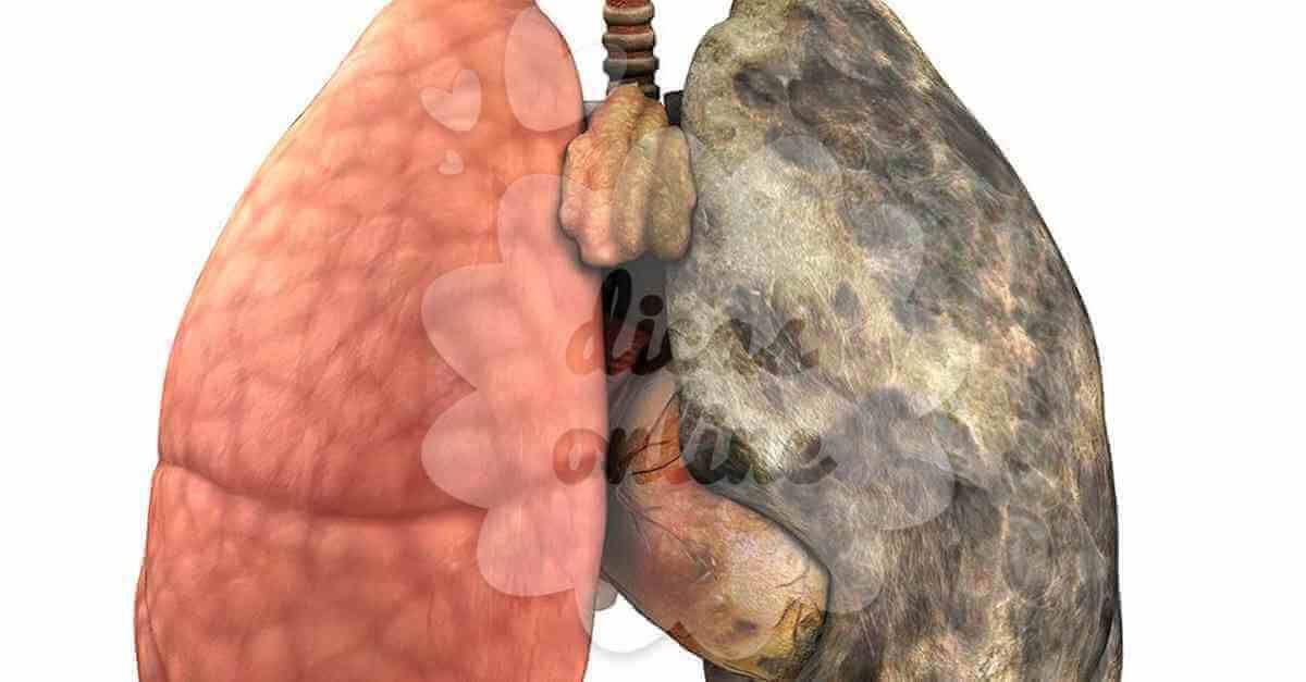 cura detoxifiere nicotina