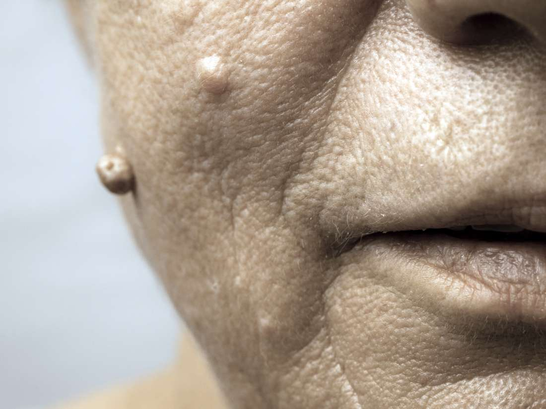 hpv on the face