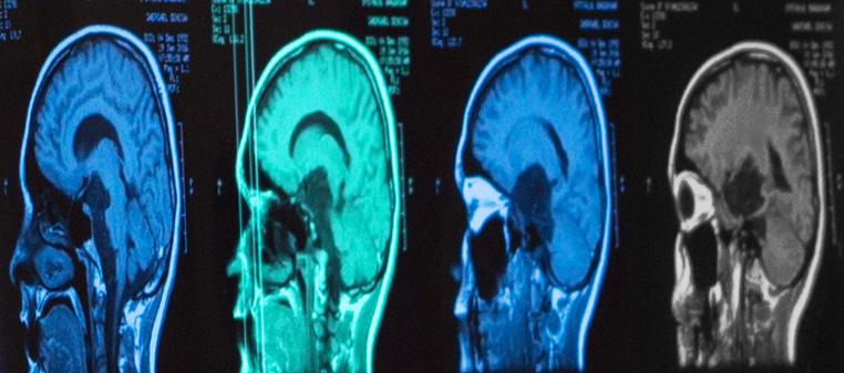 Bolnavii de cancer pulmonar cu metastaze la creier ar putea fi scutiți de radioterapie craniană