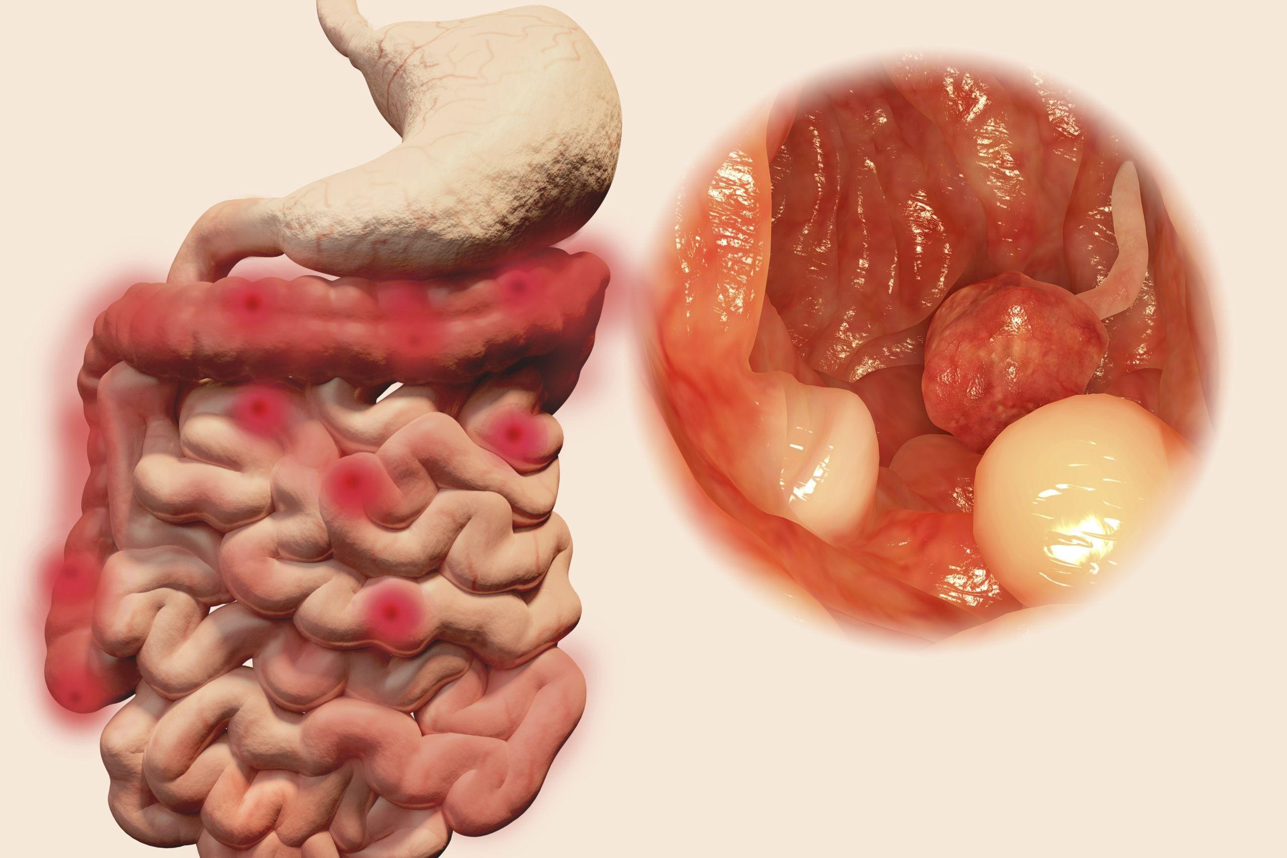 cancer colon femme symptome