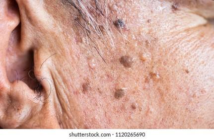 skin papilloma africa