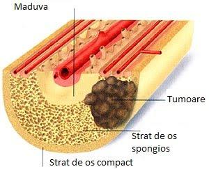 cancer oase simptome