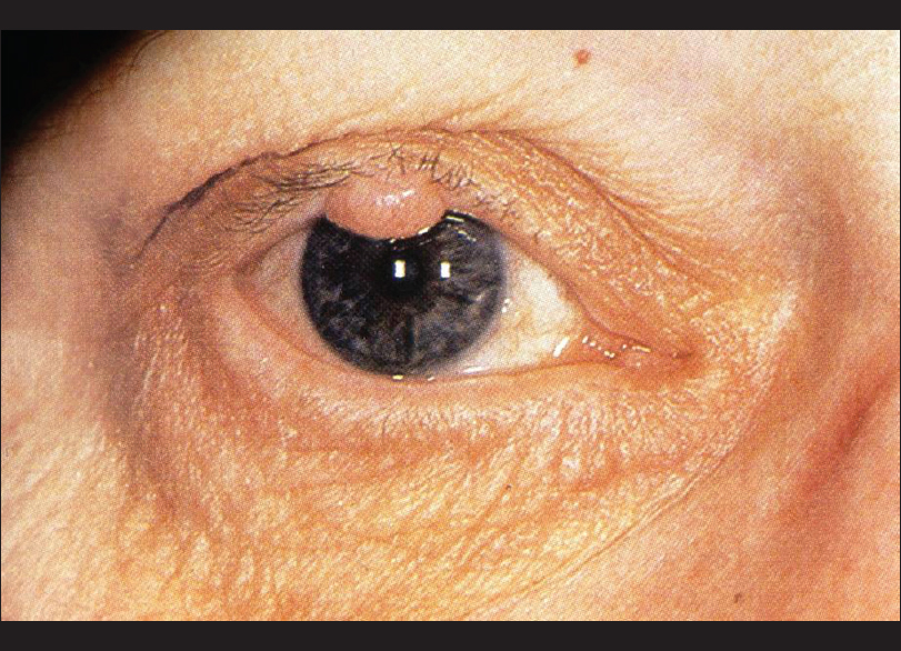 eye papilloma images)