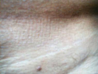 human papillomavirus shqip simptome cancer san femei