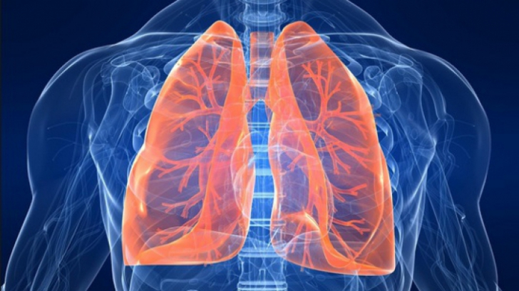 simptome cancer pulmonar ultima faza)