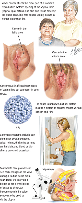 can hpv cause blood cancer