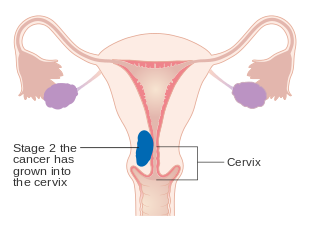 endometrial cancer in metastatic)
