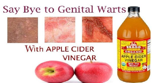 hpv warts cure natural