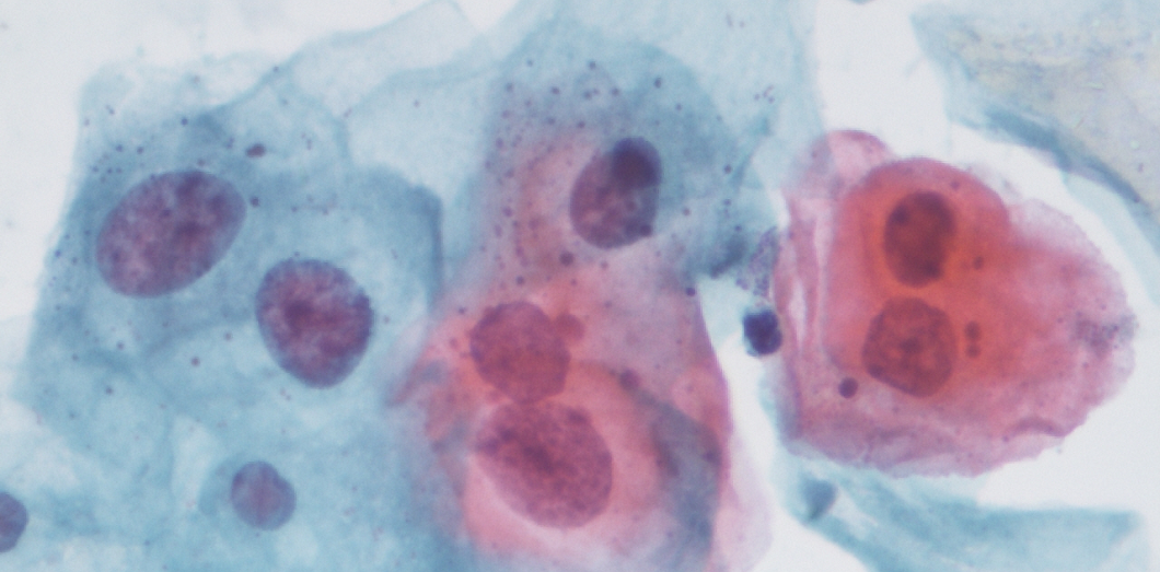 cellule papillomavirus frottis