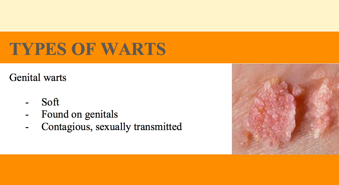 cervical warts causes)