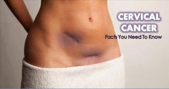 cancer cervical de sintomas)