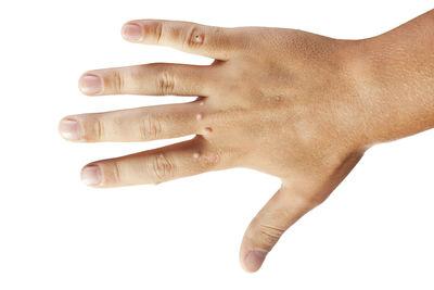 hpv warzen finger
