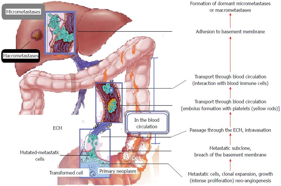 Bone metastases from colorectal cancer