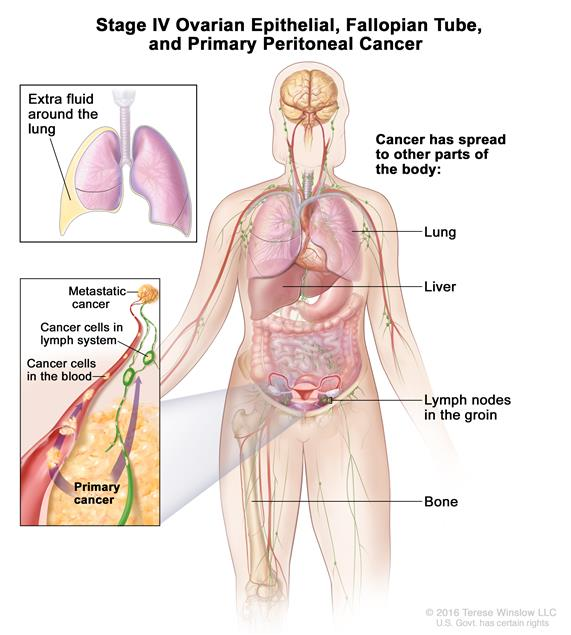 peritoneal cancer last stages