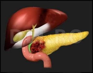 cauzele cancerului la pancreas)