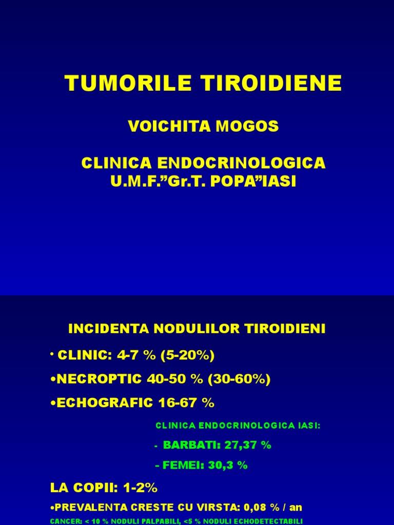 Cancerul tiroidian: cauze, simptome & tratament
