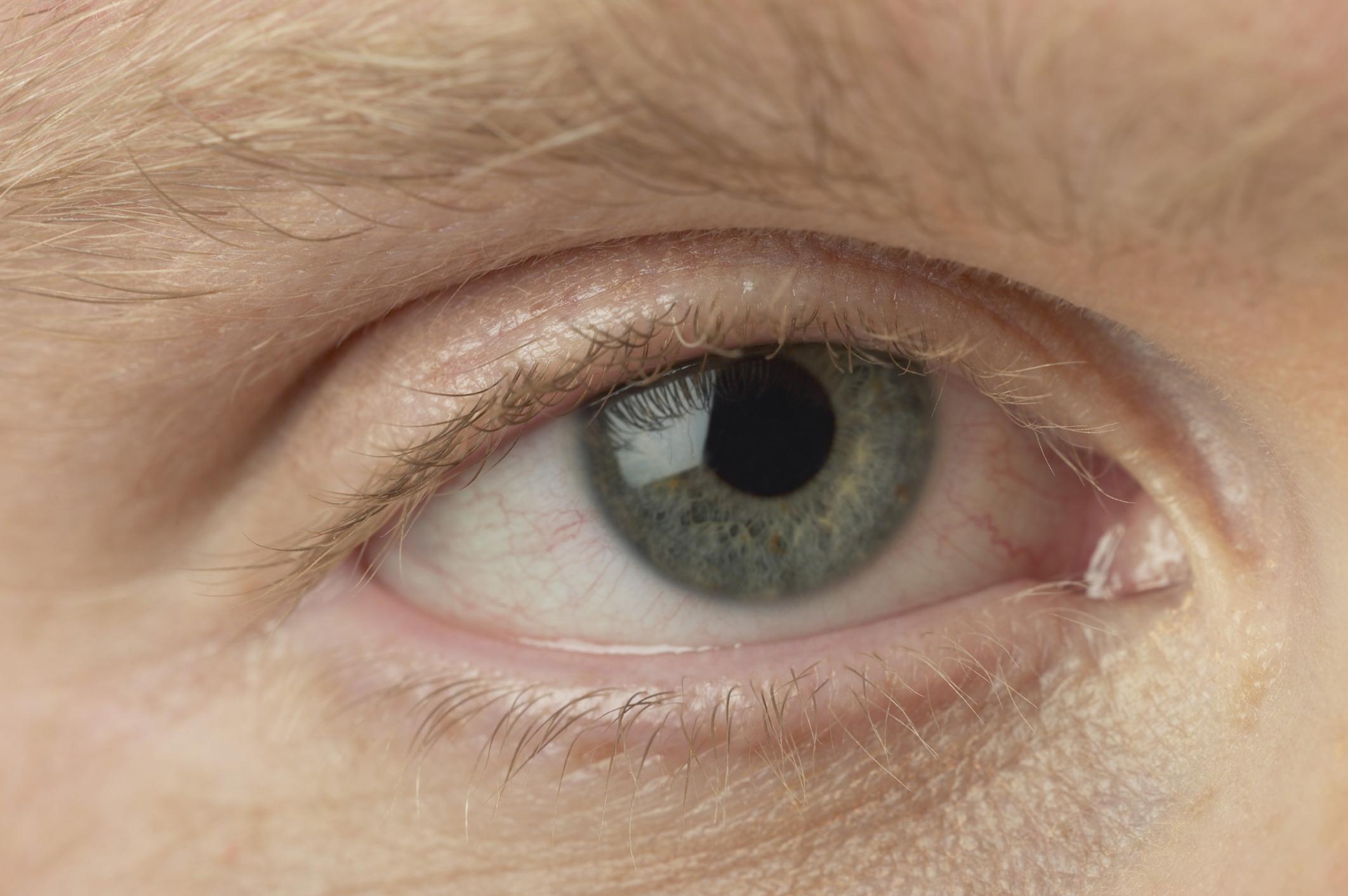 96 Best Tratamente images in   Beauty hacks, Health, Droopy eyelids