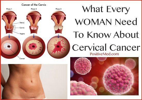 cancer la san factori de risc