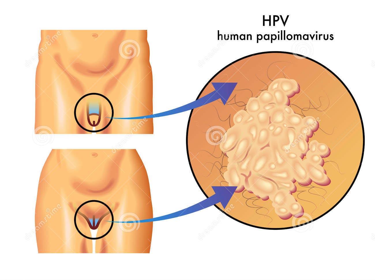 sintomi da papilloma virus nelluomo
