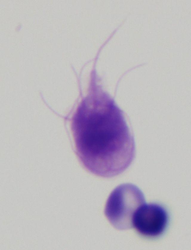 parazit lamblia intestinalis)