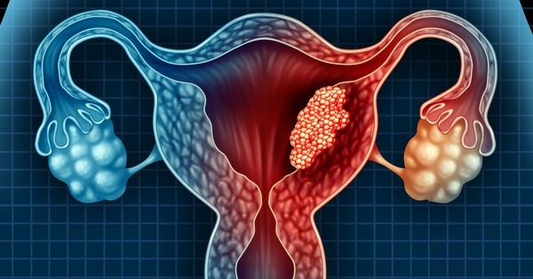 Cancerului de endometru. 5 simptome adeseori ignorate