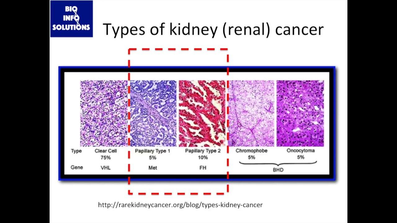 renal cancer usmle)