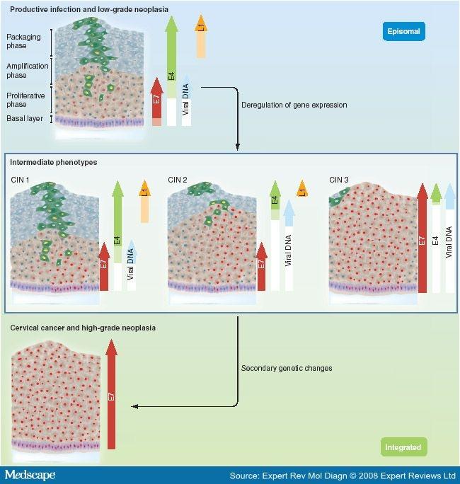 Human Papillomavirus (HPV) - ARNm E6/E7 - Detalii analiza | Bioclinica