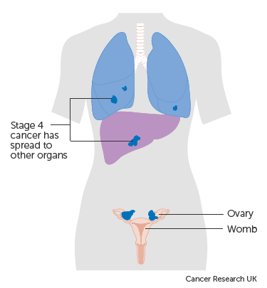 papillary thyroid cancer young adults cancer abdominal cie 10
