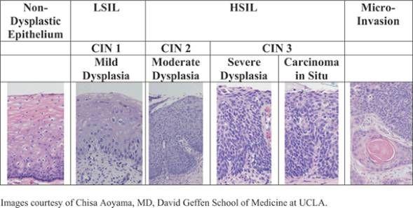 hpv causes mild dysplasia