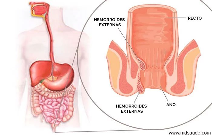 cancer colon y hemorroides)