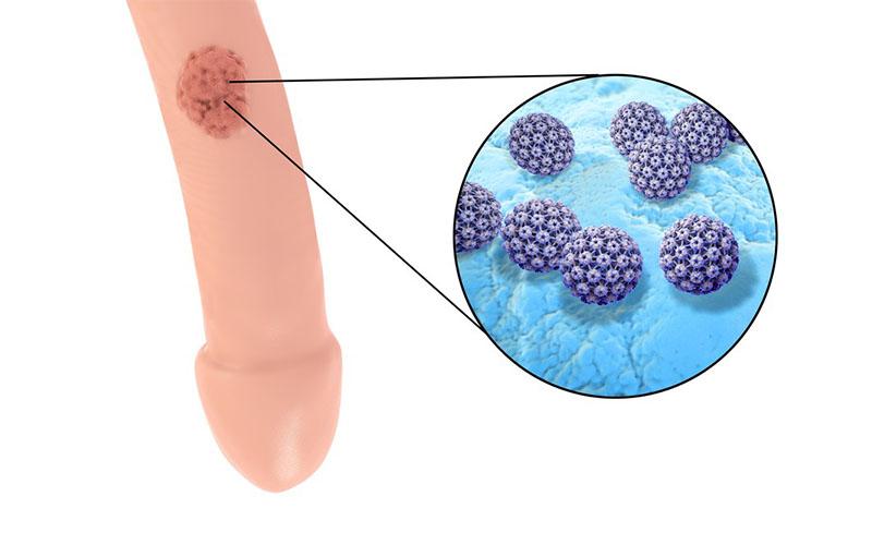 come si presenta il papilloma virus nelluomo