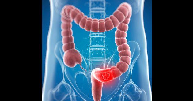 cancer pared abdominal