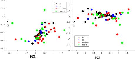 hpv detection using pcr cancerul de san tipuri