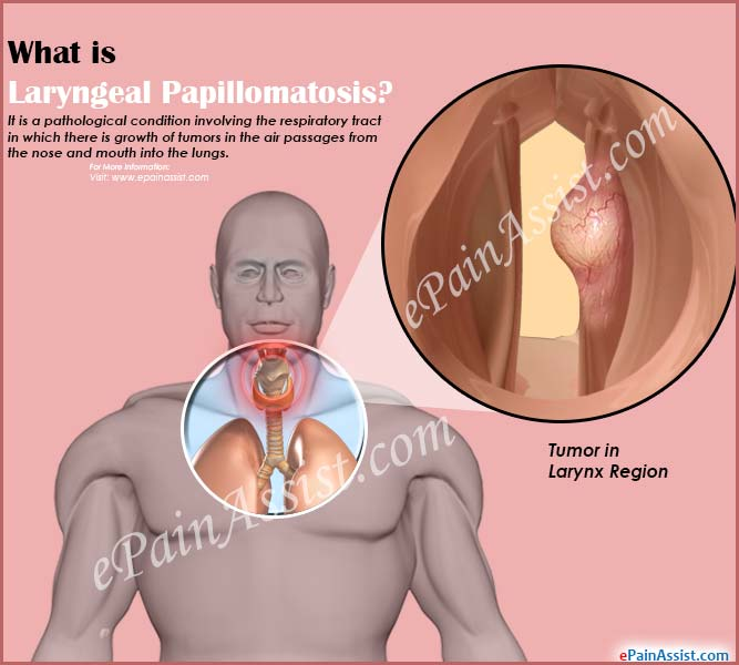 laryngeal papillomatosis and cancer