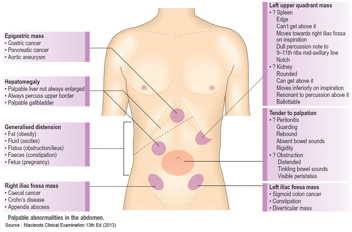 pancreatic cancer abdominal distension)