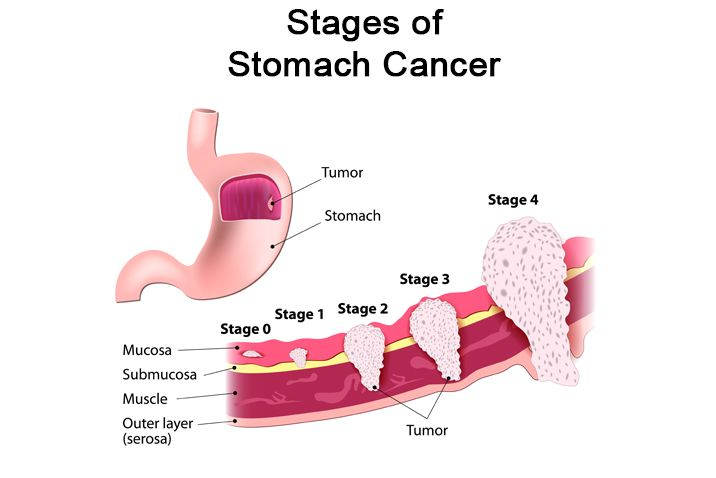 gastric cancer early stage)