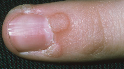 clear warts on hands pictures